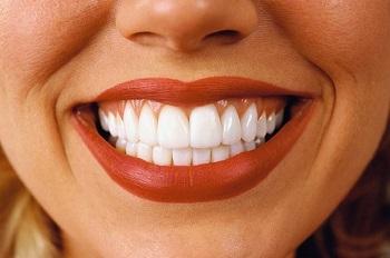 Голливудская улыбка или стоматология на дому