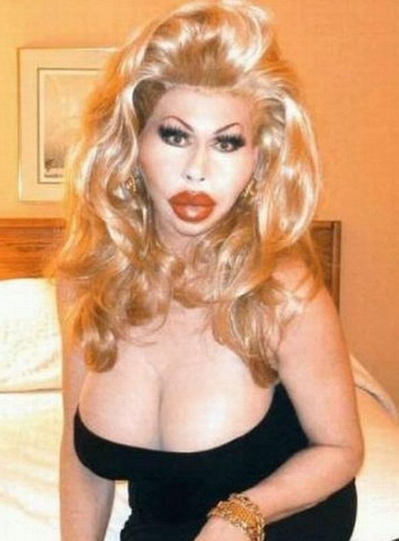 Неудачные пластические операции фото звезд накаченные губы