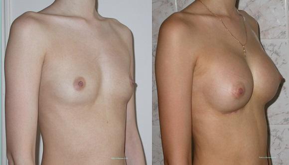 Женская грудь. Стоит ли делать пластику